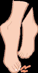 足先に痛みがあるイラスト